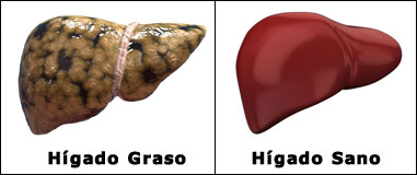 Hígado Graso and Hígado Sano